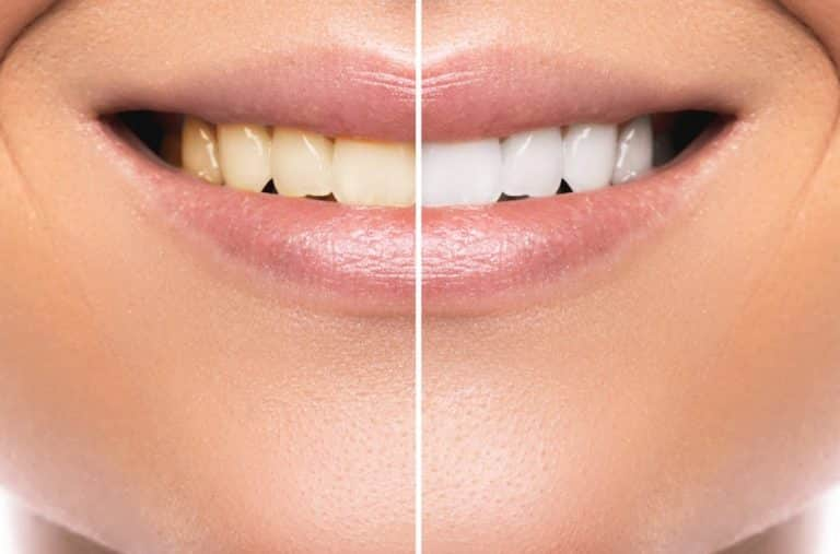 Teeth Before and after Diamond Smile Use